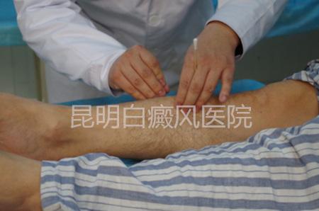 中医治疗白癜风的偏方