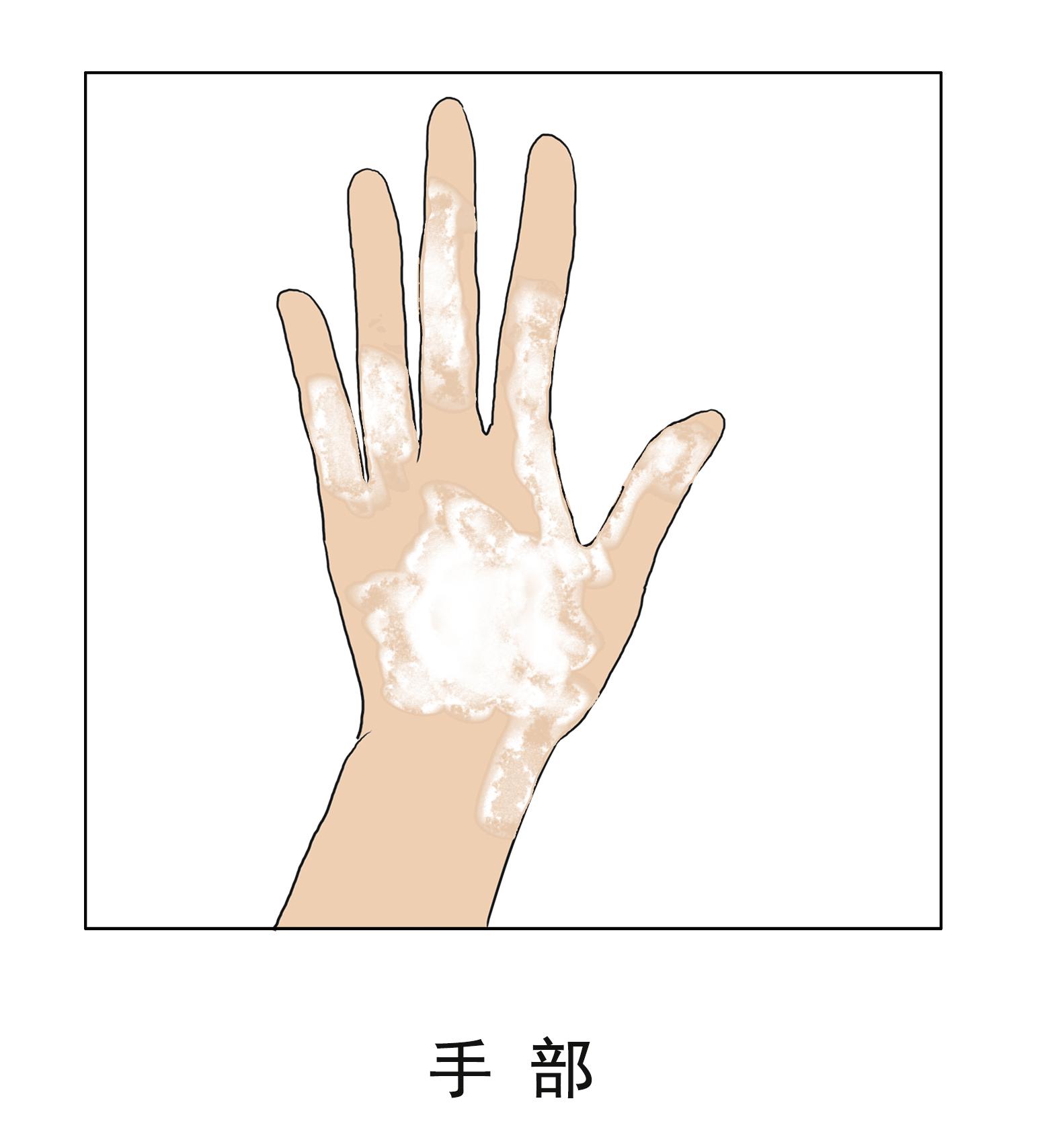 昆明哪里治疗白斑病有效?手部为什么会经常出现白癜风