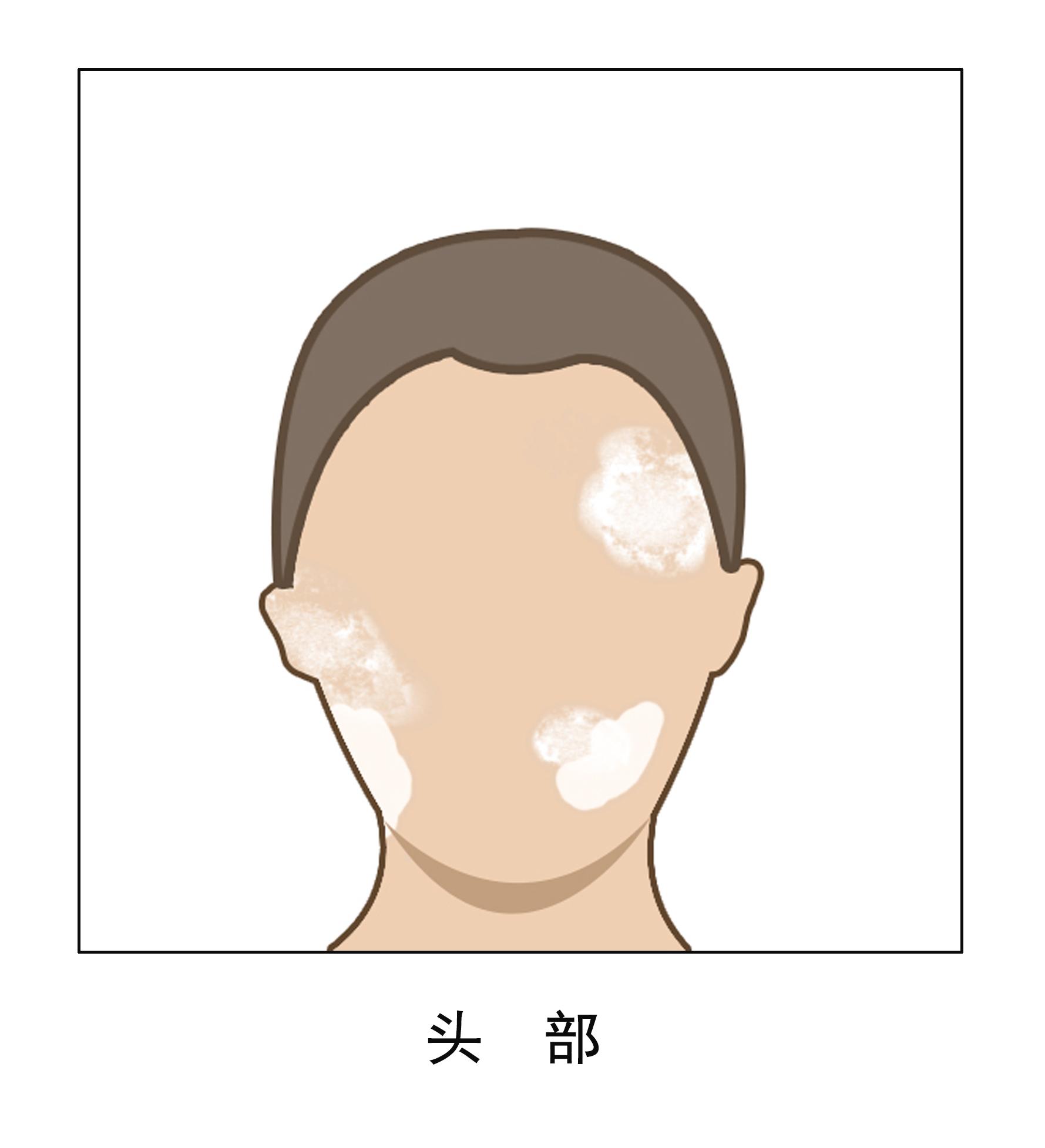 云南白斑专科医院哪里好?青少年脸部早期的白癜风有哪些症状