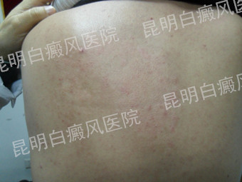 男性背部散发型白癜风6个月
